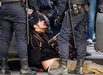 herido por policia