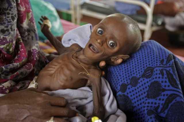 xiquet desnutrit